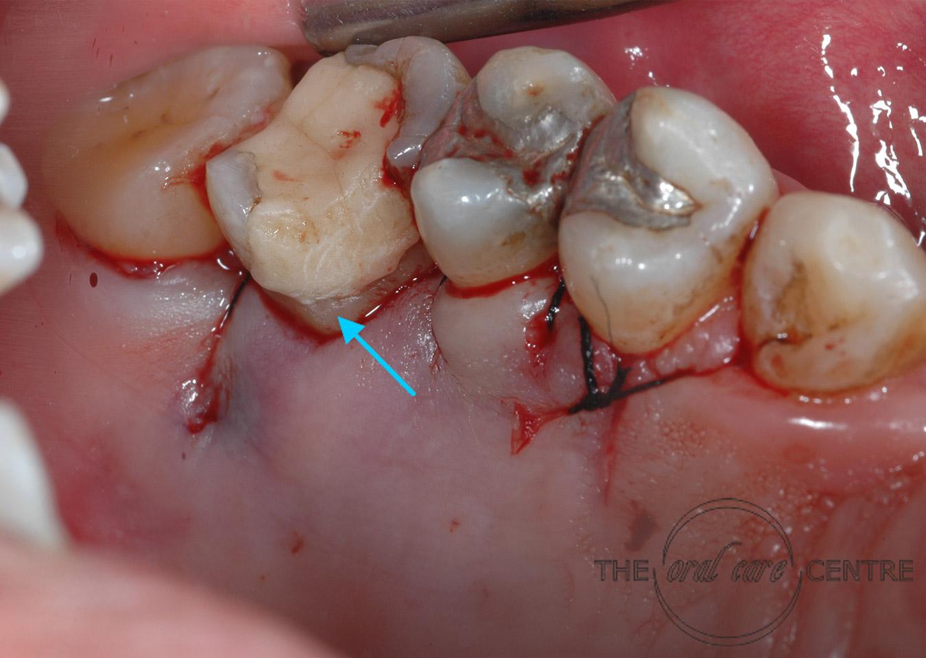 Exposed fracture margins
