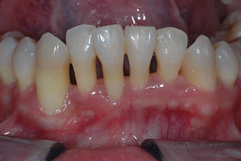 Receding Gums Oralcare