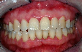 A. Reddish gums at the junction between the teeth and the gums. Note the black deposits (tartar) between the teeth.