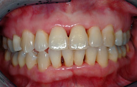 B. Pink and healthy gums